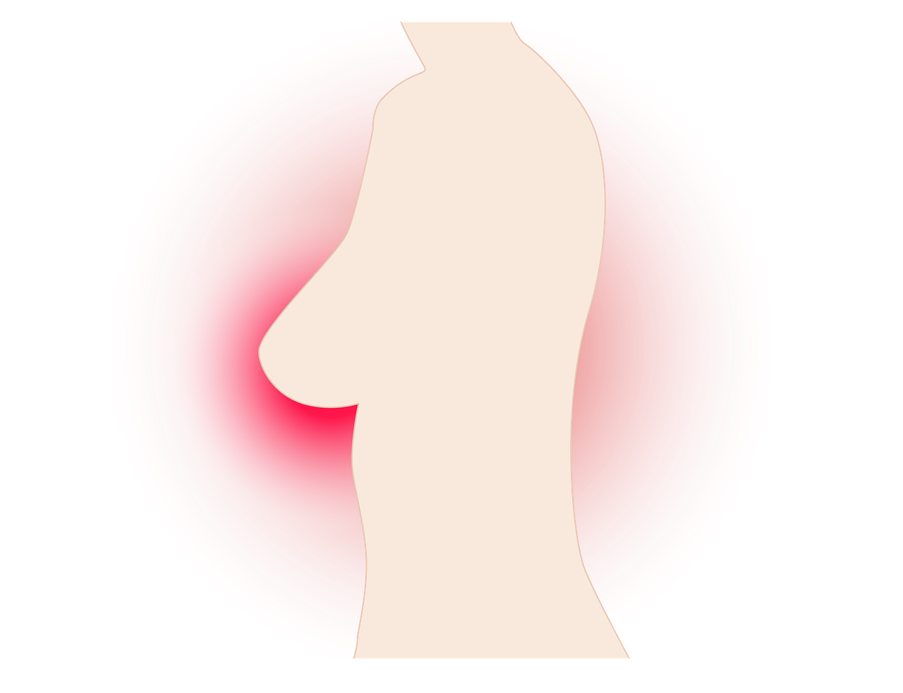 乳がんの検査で造影CTは必要なのか?